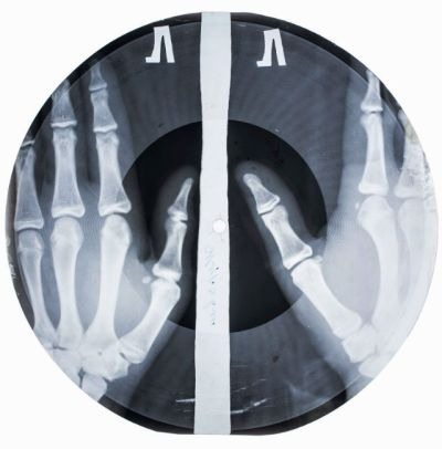 vinyl record made out of a hand radiograph