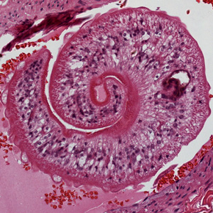 Higher magnification of one of the worms in Figure A, showing the tuberculate exterior of the adult worm.