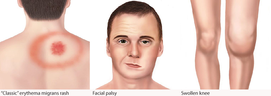 medical illustration of Erythema migrans, medical illustration of Bell's Palsy, and medical illustration of an arthritic knee
