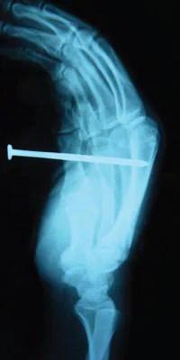 Radiografía de una lesión causada por pistola de clavos