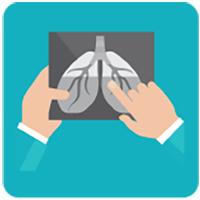 Bir röntgen tutan eller