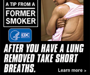 A Tip from a Former Smoker: After you have a lung removed take short breaths.