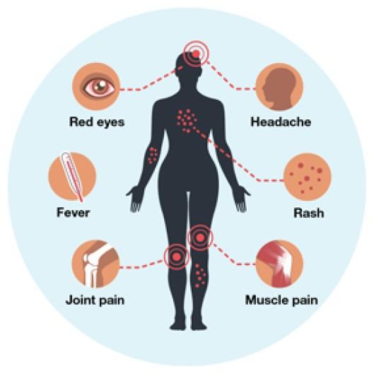 Overview | Zika Virus | CDC