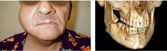 Jaw Surgeries