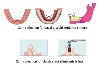 Gum Flap Reflection for Basal Implant