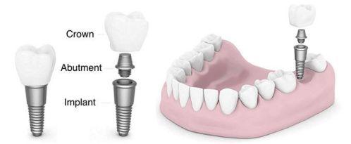 Stages of dental implants