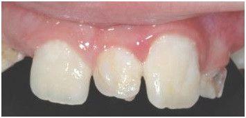 Extra teeth in Midline