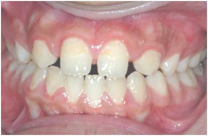 Diastema due missing incisors
