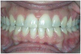 Diastema Closure After Treatment (Orthodontic)