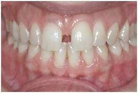 Gap in Teeth Treatment