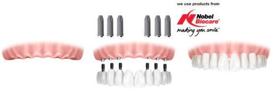 all-on-6 dental implant system