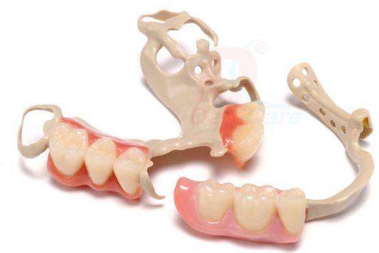 PEEK Dentures Cost