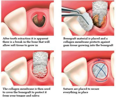 Bone Grafting Cost in Gurgaon