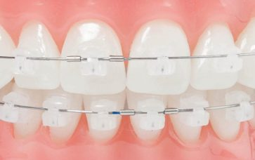 Braces Cost in Gurgaon