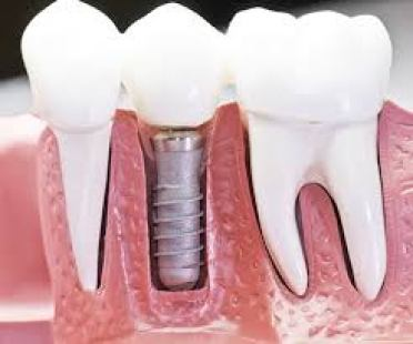 Oral Implants