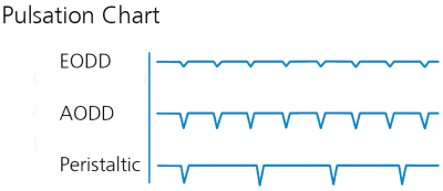 A pulsation chart to show the benefits of the EODD
