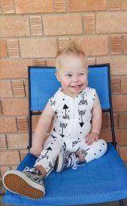down syndrome and retinoblastoma