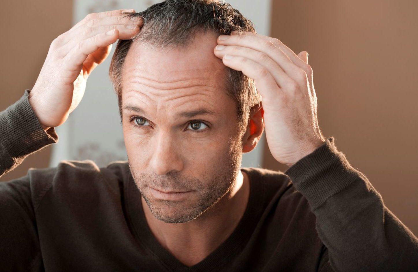 łysienie a wypadanie włosów