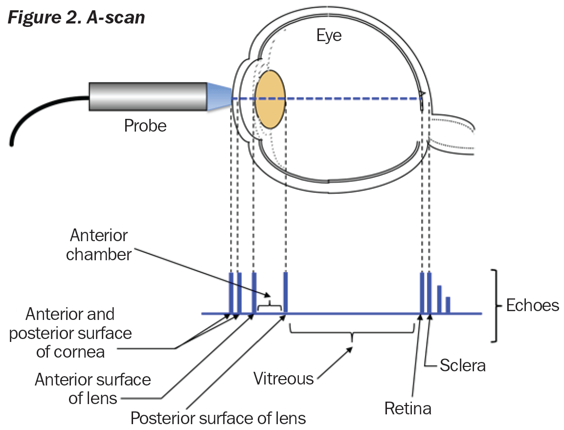 Community Eye Health Journal Caring For A And B Scans