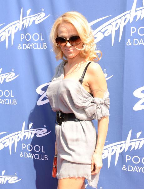 Pamela Anderson Plastic Surgery 2013
