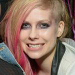 Avril Lavigne Plastic Surgery Before and After