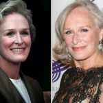 Glenn Close Plastic Surgery Before and After