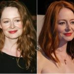 Miranda Otto Plastic Surgery Before and After