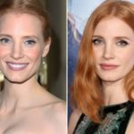 Jessica Chastain Plastic Surgery Before and After