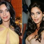 Mallika Sherawat Plastic Surgery Before and After