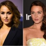 Camilla Luddington Plastic Surgery Before and After