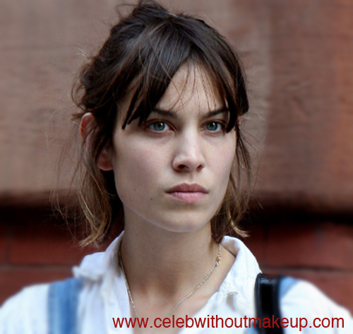 Alexa Chung Celeb Without Makeup 1