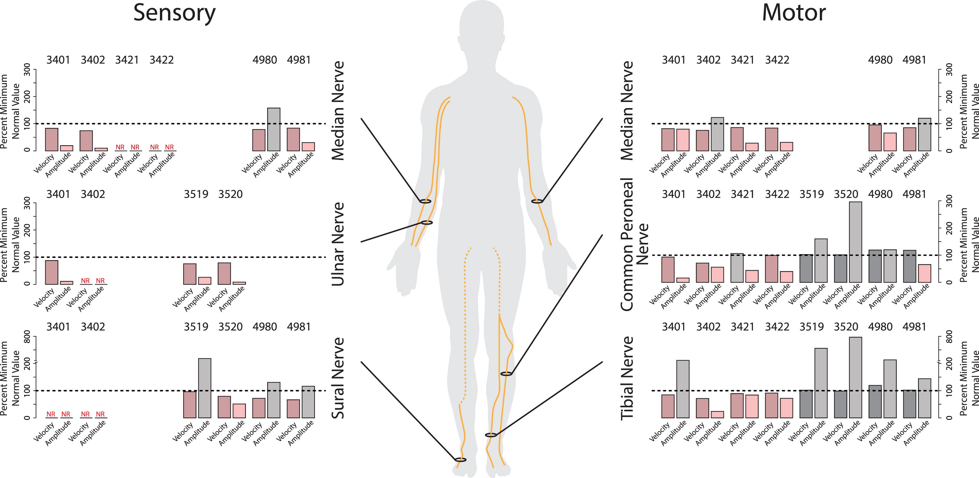 Human Clp1 Mutations Alter Trna Biogenesis Affecting Both