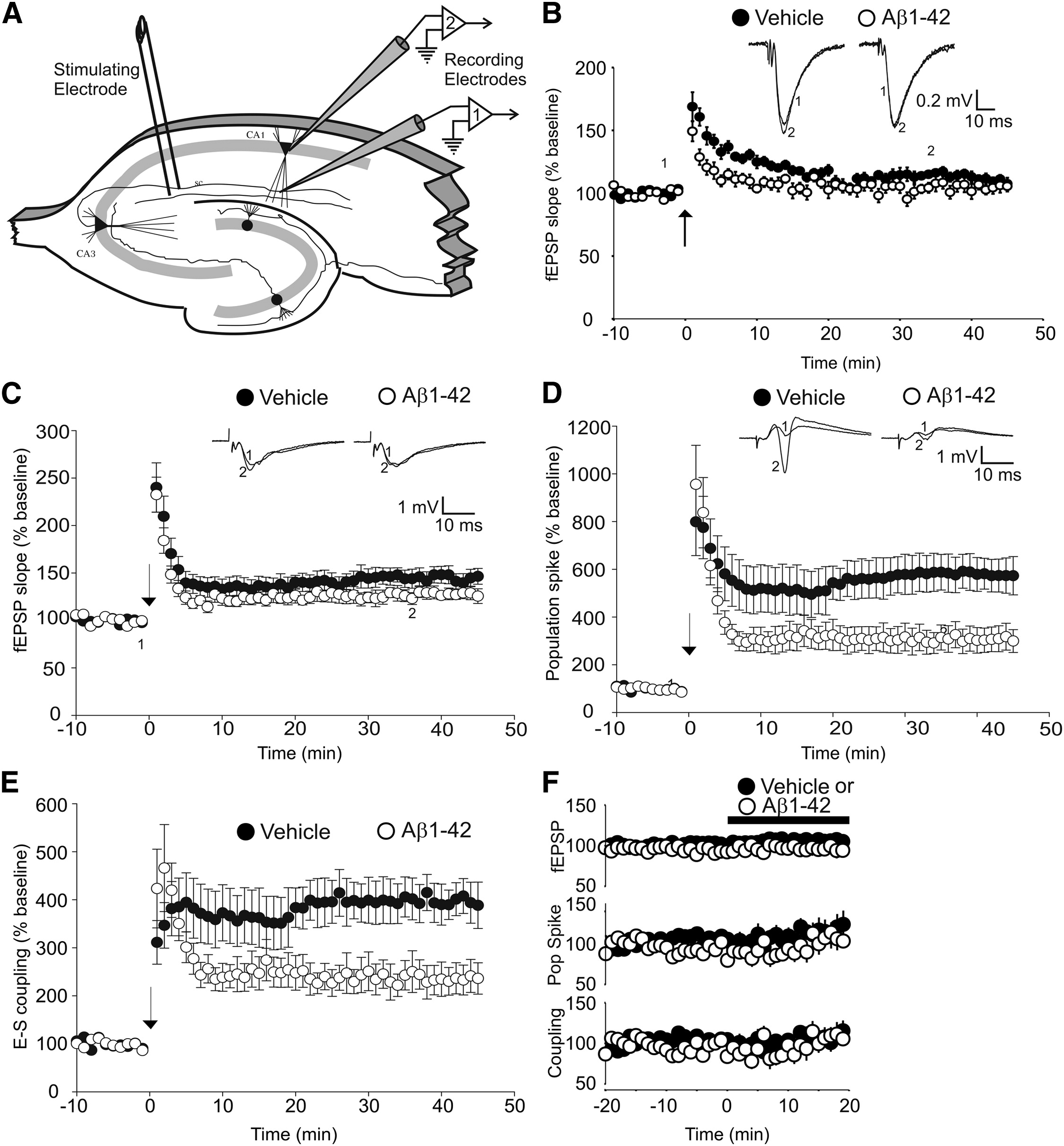 Amyloid Inhibits E S Potentiation Through Suppression Of