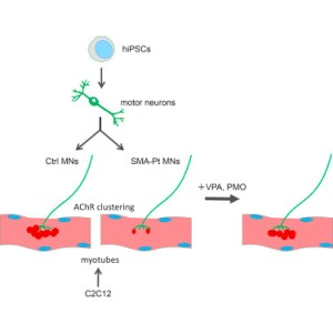 Modeling the Early Phenotype at the Neuromuscular Junction