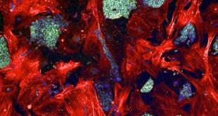 celulas madre mesenquimales