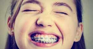 3 consejos para acelerar el tratamiento de ortodoncia