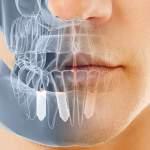3 formas en que los implantes dentales pueden mejorar tu vida