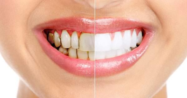 3 trucos caseros para blanquear tus dientes