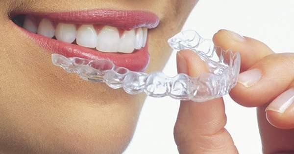 5 preguntas para tu ortodoncista sobre Invisalign