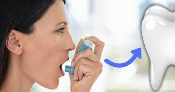 Asma ¡Detonante de enfermedades bucodentales!