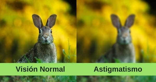 Astigmatismo ¡Causas, signos y tratamiento!