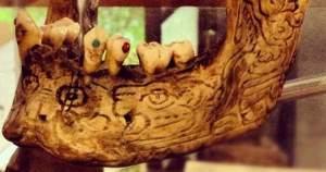 ¿Cómo era la odontología hace 9,000 años?