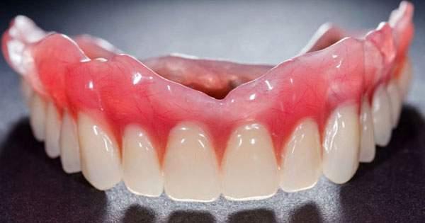 Cómo funciona el adhesivo para dentaduras postizas
