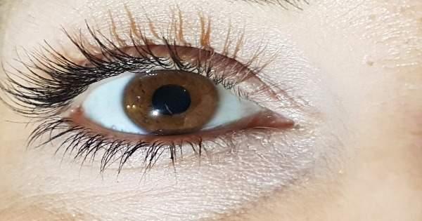 ¿Cómo tratar la Hipertensión Ocular o Presión Intraocular?