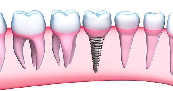 Conoce el proceso de colocación de los implantes dentales