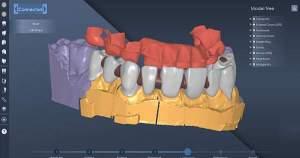 Conoce la nueva tecnología para diseñar y elaborar prótesis dentales