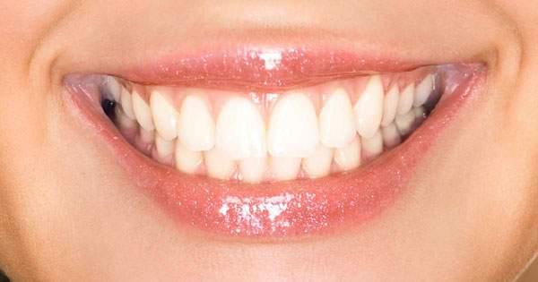 ¡Conoce la verdad sobre el blanqueamiento dental!