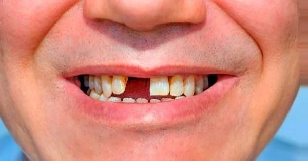 Conoce los principales motivos de la pérdida de dientes