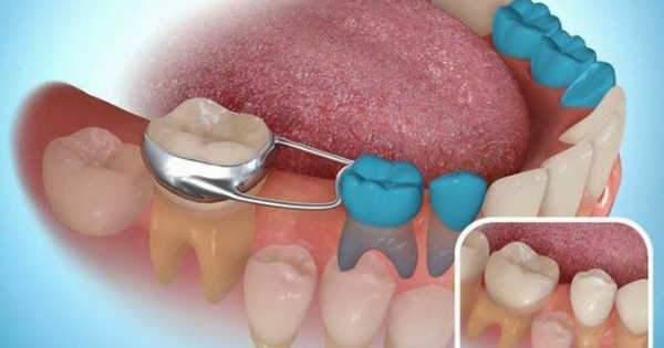 Conoces los mantenedores de espacio dental para niños