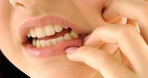 ¿Cuáles son los problemas más comunes de las encías?